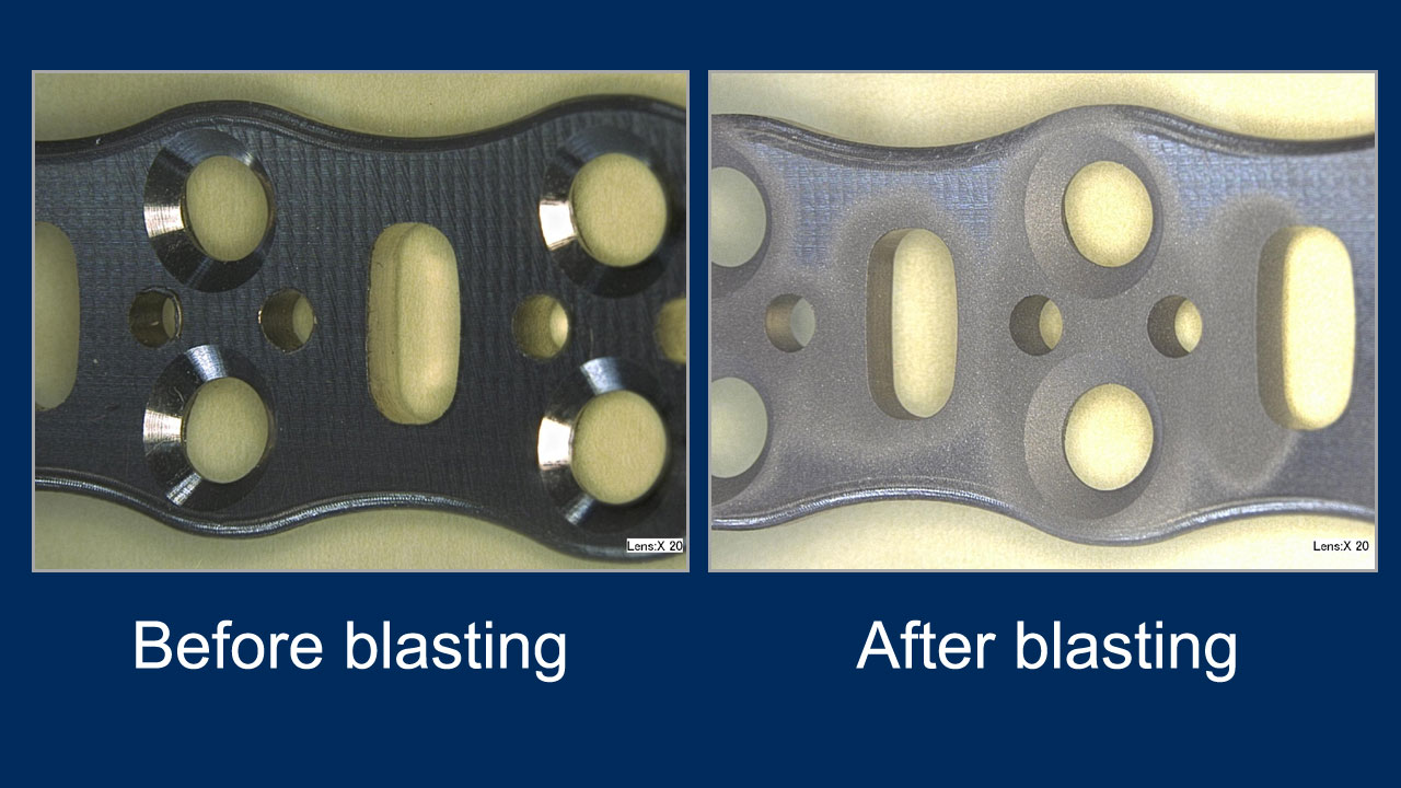 bone plate - before and after deburring with pumice